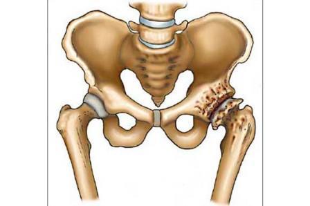 csontok és ízületek fájdalmainak felírása