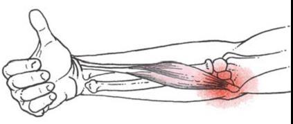 epicondylitis könyökízületi kenőcsök kezelésre