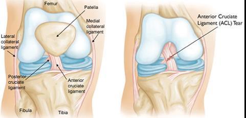 Csípőízületi műtét késleltetése | budapestguides.hu