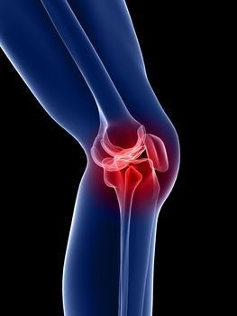 térdízület gonartrosis gyógyszerei ligamentitis deltoid ligamentum boka kezelése